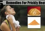 Naturally 5 home remedies to Prickly heat rash